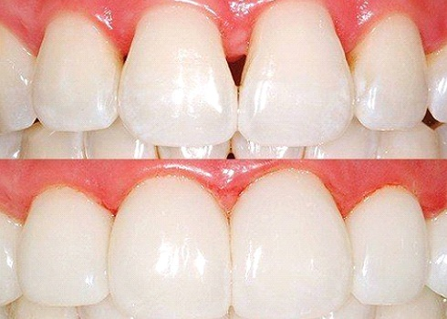 before and after BioClear