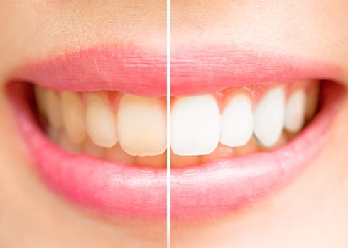 Closeup of smile before and after teeth whitening treatment