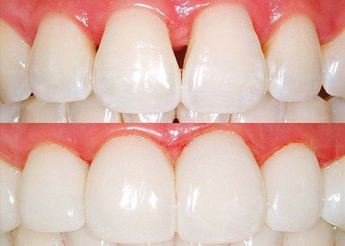 Closeup of smile before and after treatment