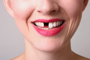 Restore your smile with your  implant dentist in Toronto