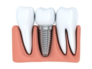 Dental implants in uptown Toronto look and function like real teeth. Could you receive these tooth replacements from Dr. Janet Tamo?